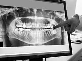 Panoramic dental x-rays on computer
